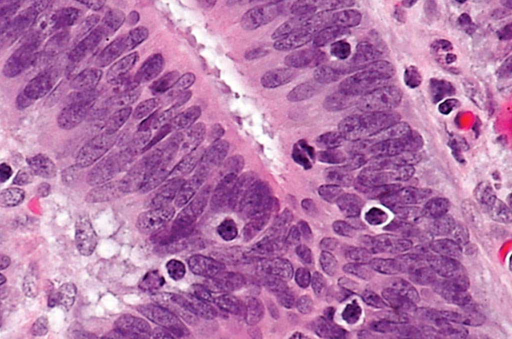 Image: A photomicrograph showing tumor-infiltrating lymphocytes in a case of colorectal cancer with evidence of high microsatellite instability (MSI-H) on immunostaining (Photo courtesy of Nephron).