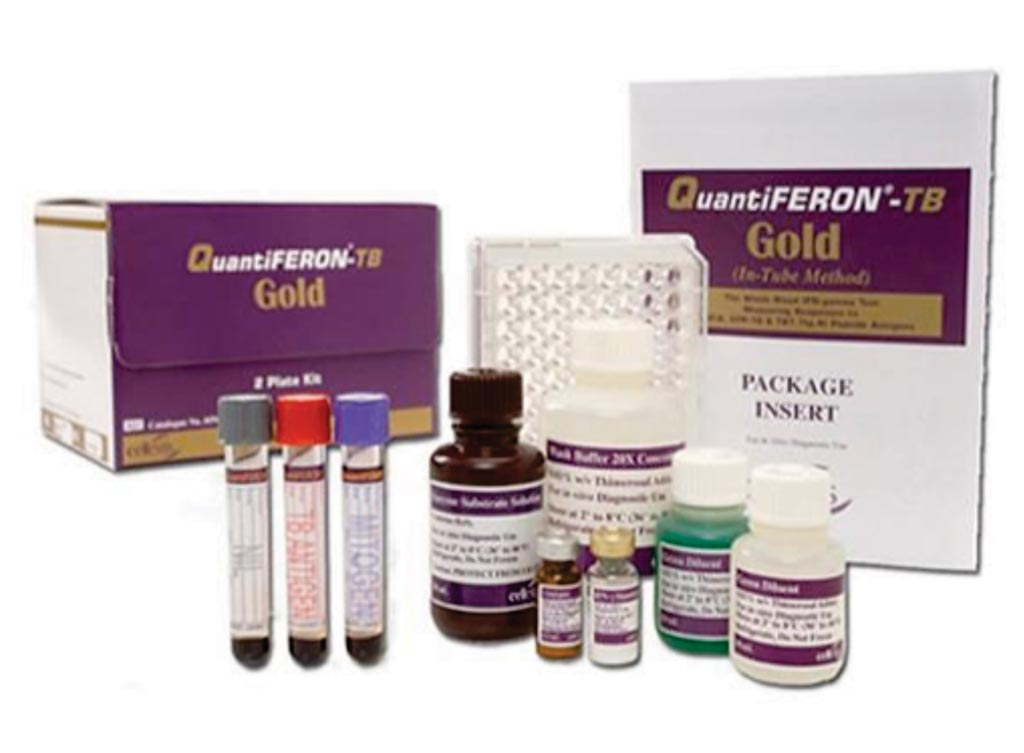 Image: QuantiFERON-TB Gold (QFT) is a simple blood test that aids in the detection of Mycobacterium tuberculosis, the bacteria which causes tuberculosis (TB). QFT is an interferon-gamma (IFN-γ) release assay, commonly known as an IGRA, and is a modern alternative to the tuberculin skin test (Photo courtesy of Qiagen).