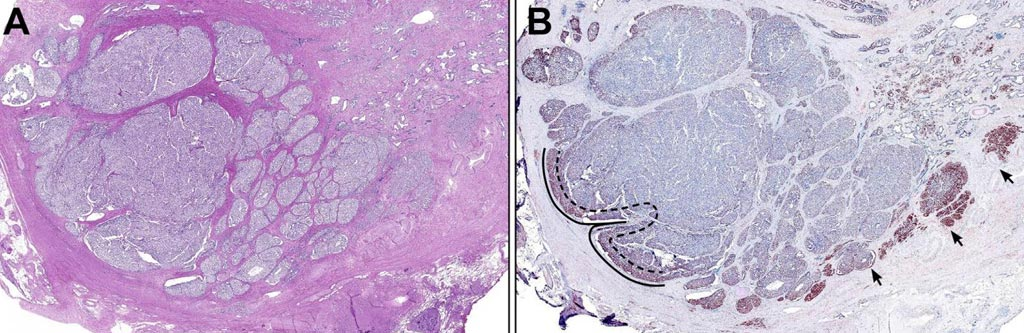 Image: (A) Low magnification view of cancer nodule with the central tumor bulk consisting predominantly of invasive cribriform Gleason pattern four. (B) Low magnification view of the same cancer nodule with an outer rim of accentuated syntaphilin (SNPH) staining. The invasive front is defined as the external rim of each cancer nodule abutting the adjacent stroma as outlined in this image as the zone between the dotted and solid lines. Arrows denote accentuated SNPH staining at the tumor-stromal interface (Photo courtesy of the American Journal of Pathology).