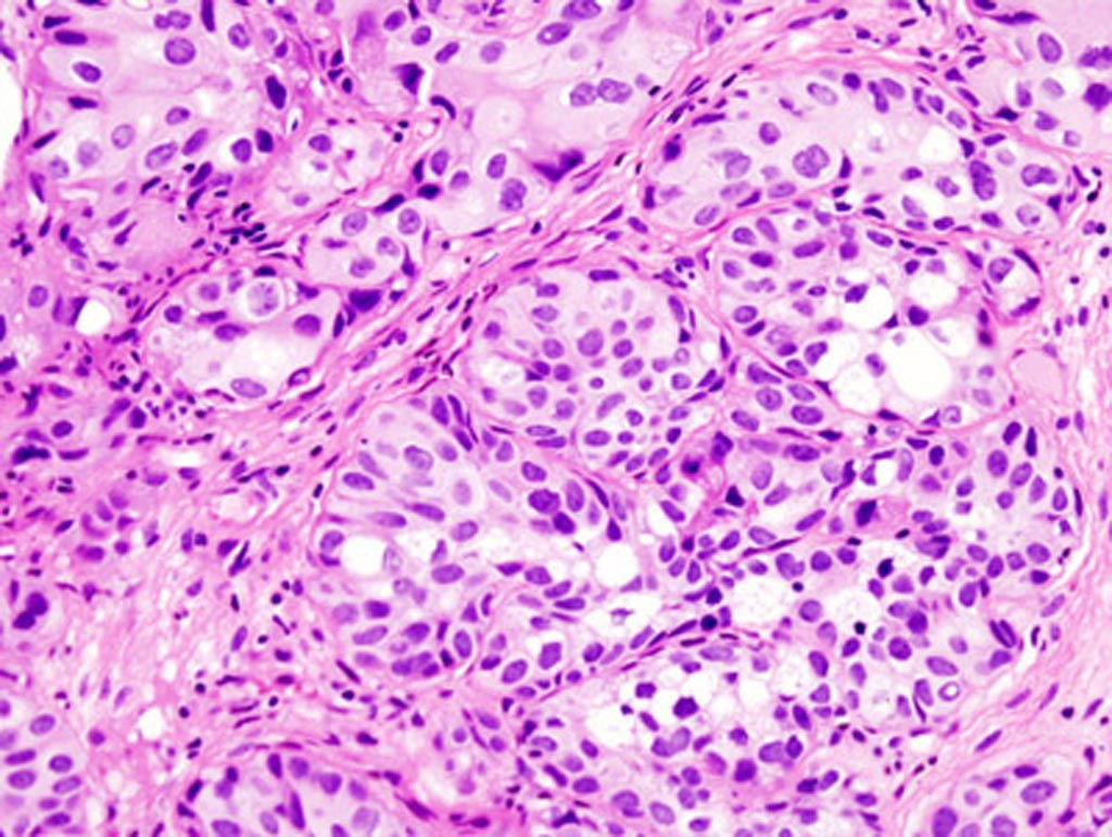 Image: A micrograph of urothelial carcinoma of the urinary bladder (Photo courtesy of Baylor College of Medicine).