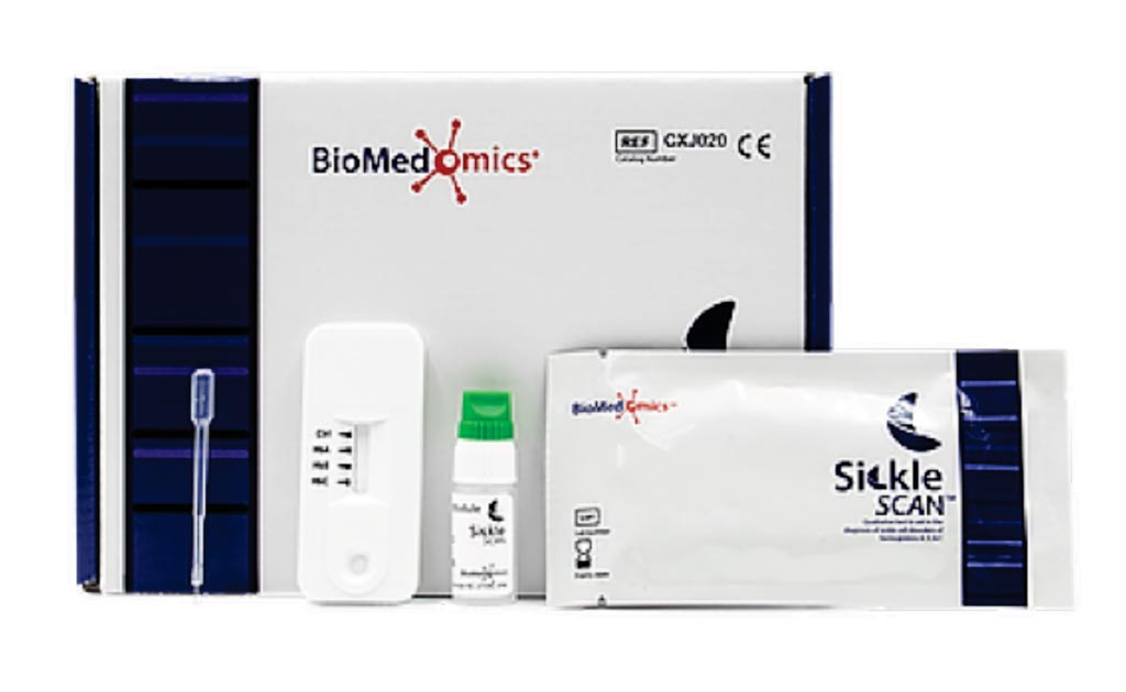 Image: Sickle SCAN is a multiplexed qualitative point-of-care immunoassay used for the rapid diagnosis of sickle cell disorders. The test is made up of three indicators which detect the presence of hemoglobin A, S, and C, allowing the user to rapidly distinguish between normal, carrier, and sickle cell samples (Photo courtesy of BioMedomics).