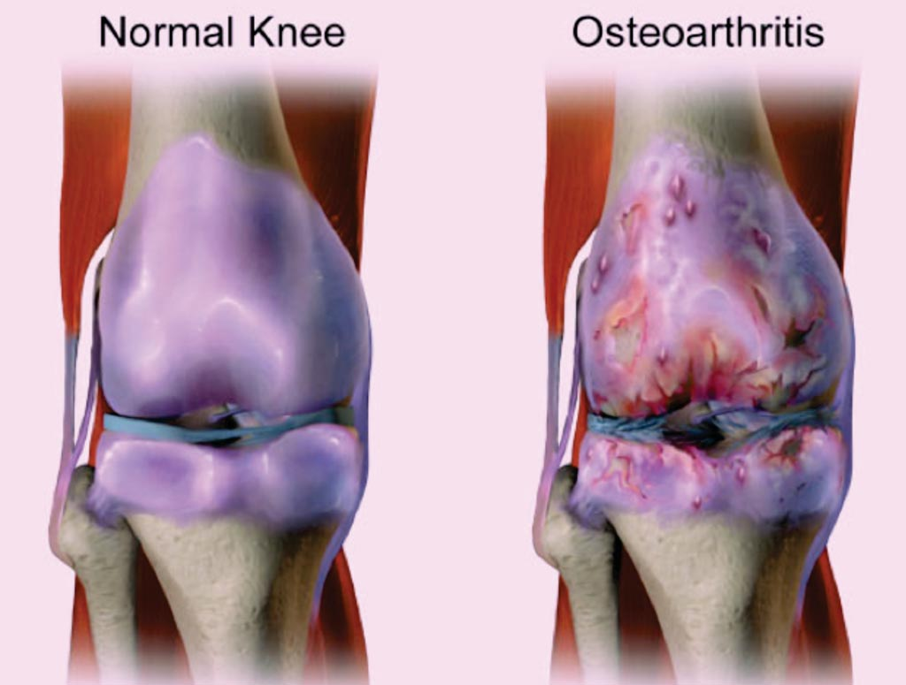 Image: Knee osteoarthritis, also known as degenerative joint disease, is typically the result of wear and tear and progressive loss of articular cartilage (Photo courtesy of Bruce Blaus).