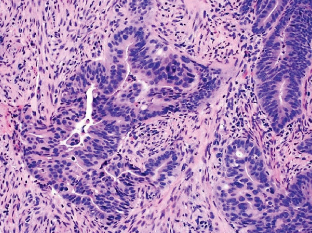 Image: A histopathology of colorectal carcinoma: an example of moderately differentiated adenocarcinoma showing complicated glandular structures in a desmoplastic stroma (Photo courtesy of the David Geffen School of Medicine at the University of California).