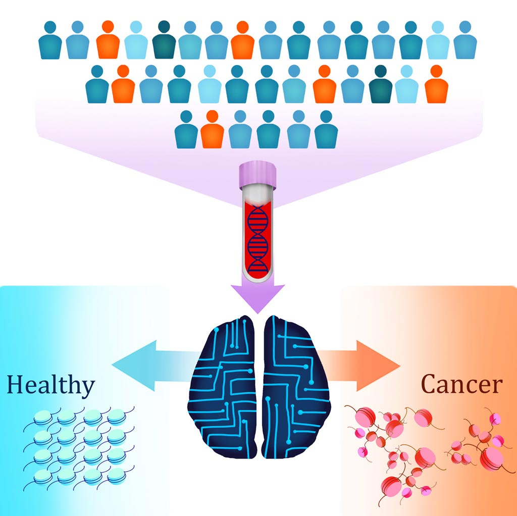 Image: A new liquid biopsy test called DELFI (DNA evaluation of fragments for early interception) uses artificial intelligence to detect patients with cancer by identifying altered DNA fragmentation in the blood (Photo courtesy of Carolyn Hruban, Johns Hopkins University).