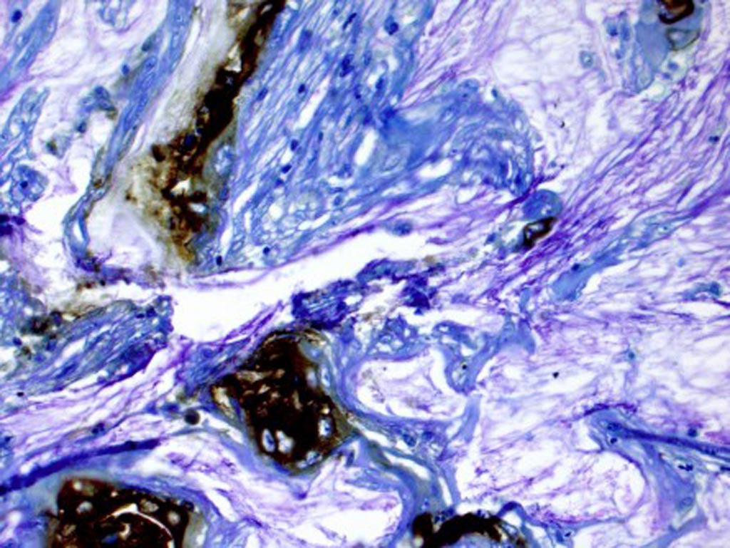 In this photomicrograph, the brown areas were stained for a biomarker in tissue from a patient who developed pancreatic cancer from a cyst (Photo courtesy of Dr. Koushik Das, Washington University).