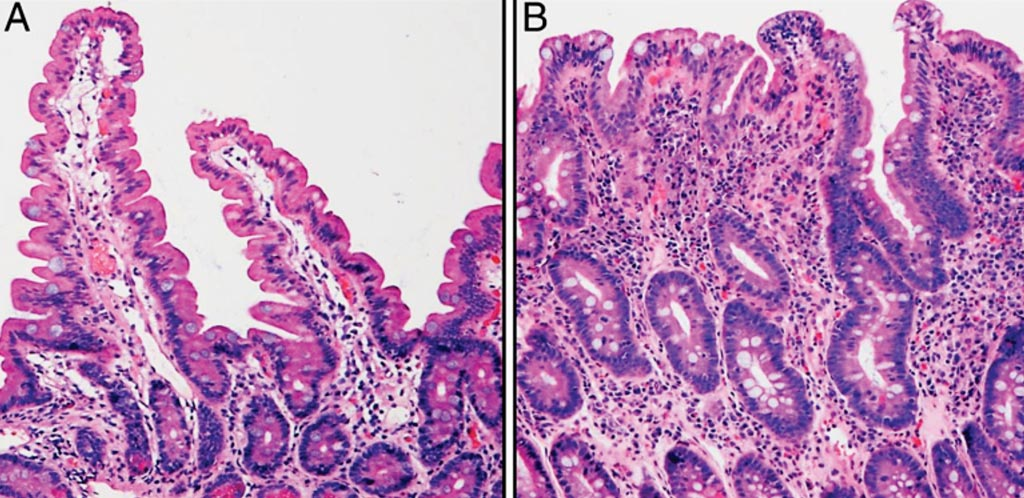 Representative histologic features of the small intestine. In the normal duodenal biopsy (A), the villi are elongated and the crypts relatively short. This is in contrast to the small intestinal tissue affected by celiac disease (B), which demonstrates marked villus blunting and crypt hyperplasia. (Photo courtesy of Tracy R. Ediger MD, and Ivor D. Hill, MD ChB).