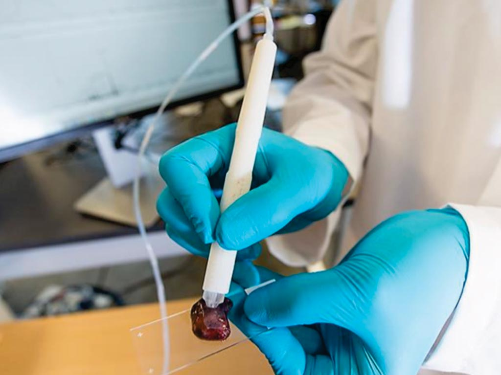 The handheld MasSpec Pen device which can be connected to a Mass Spectrometer for diagnosing ovarian and other cancers (Photo courtesy of the University of Texas at Austin).