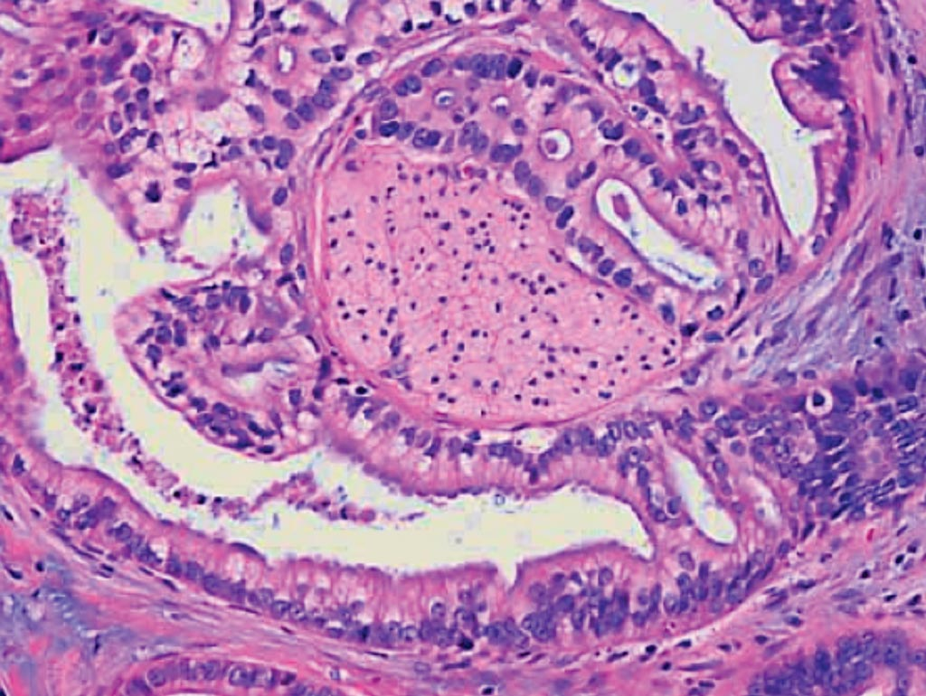 A histopathology of pancreatic ductal adenocarcinoma, a gland-forming cancer. In this example, the adenocarcinoma has wrapped around a nerve (center of the image) (Photo courtesy of JHM).