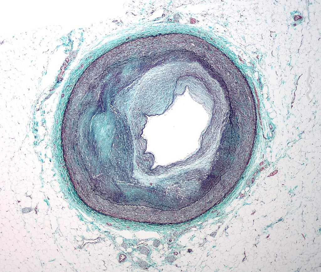 Image: A micrograph of a coronary artery with the most common form of coronary artery disease (atherosclerosis) and marked luminal narrowing (Photo courtesy of Wikimedia Commons).
