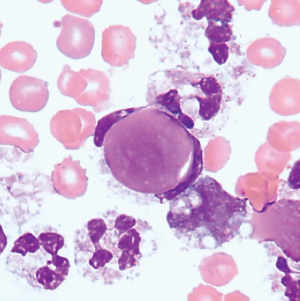 Image: Lupus Erythematosus (LE) Cells are neutrophils that have engulfed lymphocyte nuclei coated with and denatured by antibody to nucleoprotein (Photo courtesy of Dr. Moustafa Abdou).