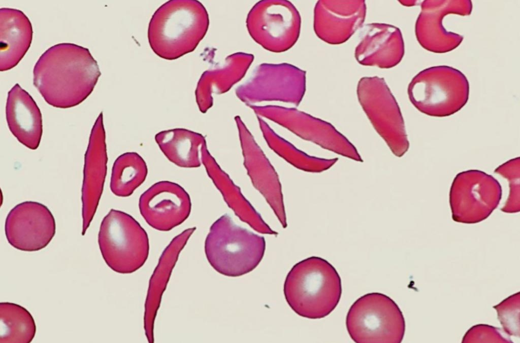 Image: A peripheral blood film from a patient with sickle cell disease (Photo courtesy of Venngage).