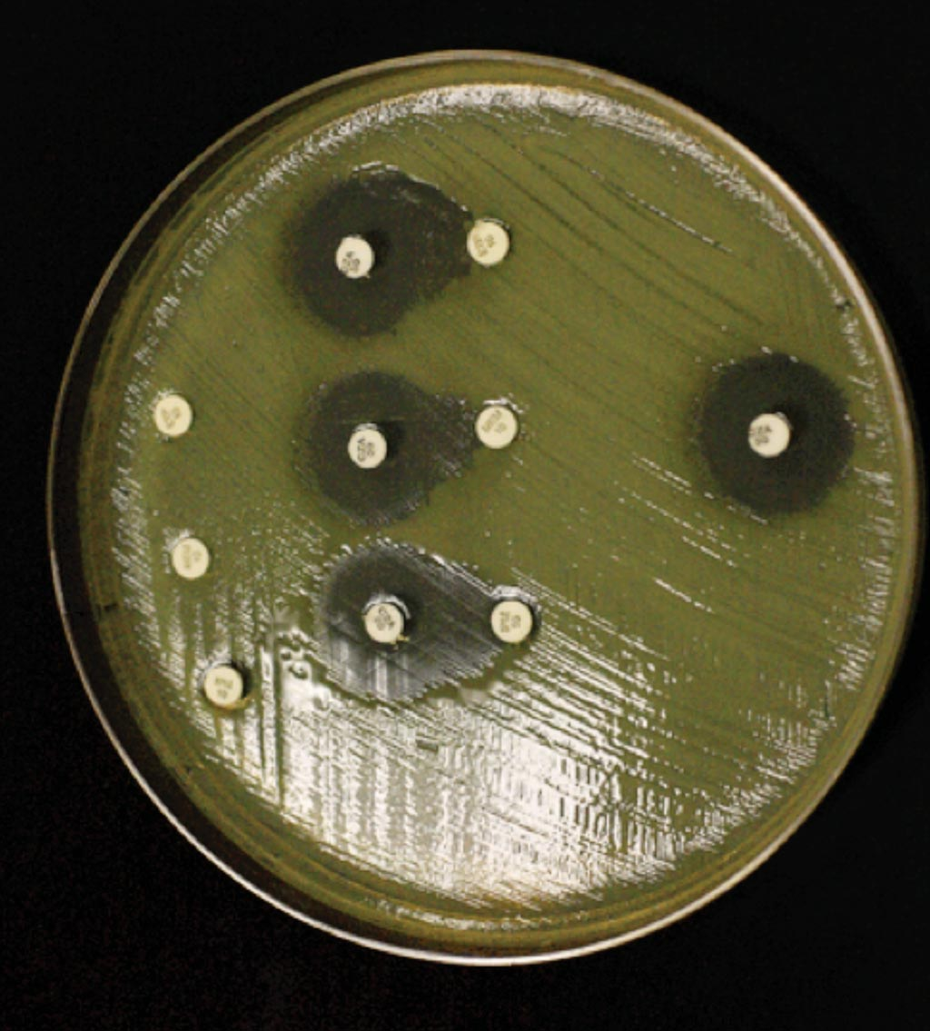 Image: Carbapenem disc diffusion susceptibility testing of the pandrug-resistant isolate of carbapenem-resistant Klebsiella pneumoniae in a Mueller-Hinton agar. In the center are three sets of discs of ertapenem, meropenem, and imipenem (top to bottom) alongside ceftazidime-avibactam (Photo courtesy of University of Miami).