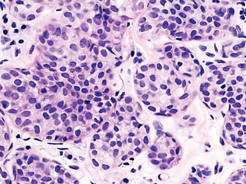 Image: A histological preparation from a patient with invasive lobular carcinoma, demonstrating a predominantly lobular growth pattern (Photo courtesy of KGH).