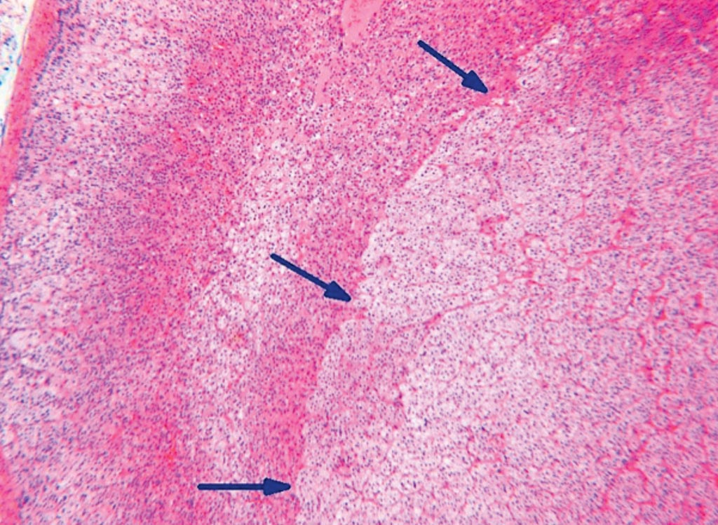 Image: A histological section showing the pushing border between the adenoma and the surrounding parenchyma (arrows) from a patient with primary hyperaldosteronism (Photo courtesy of iStock).