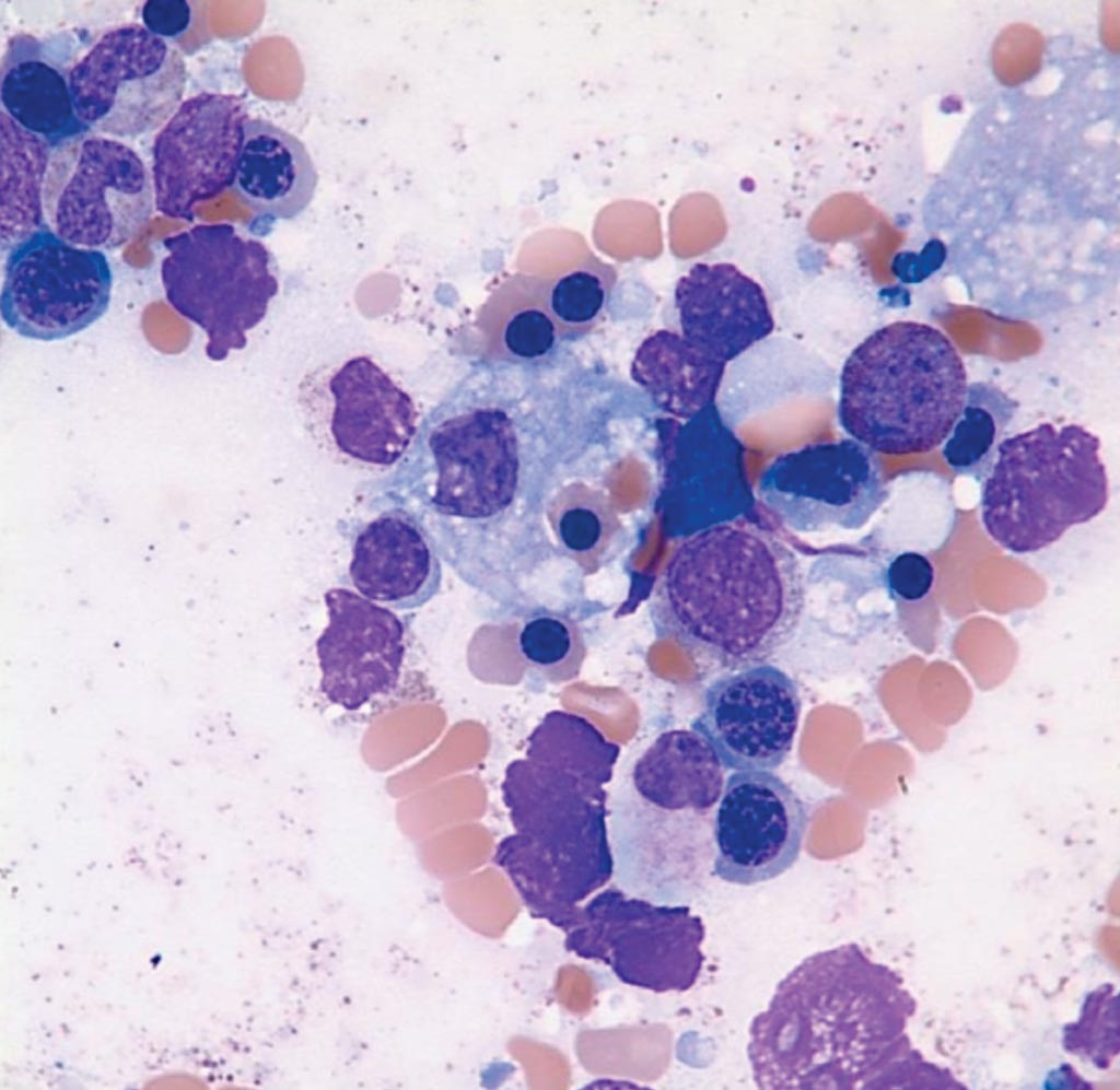 Image: A bone marrow aspirate from a patient suffering from Hemophagocytic Lymphohistiocytosis showing a macrophage that has ingested a nucleated red cell (Photo courtesy of UF).