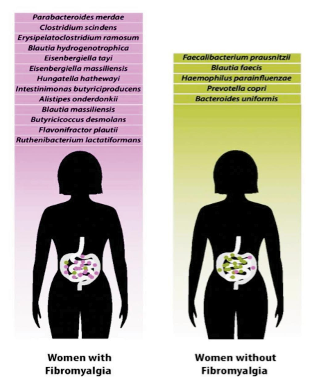 Image: Research shows fibromyalgia patients may have a distinct composition of gut microbiome species (Photo courtesy of Christopher Bergland).