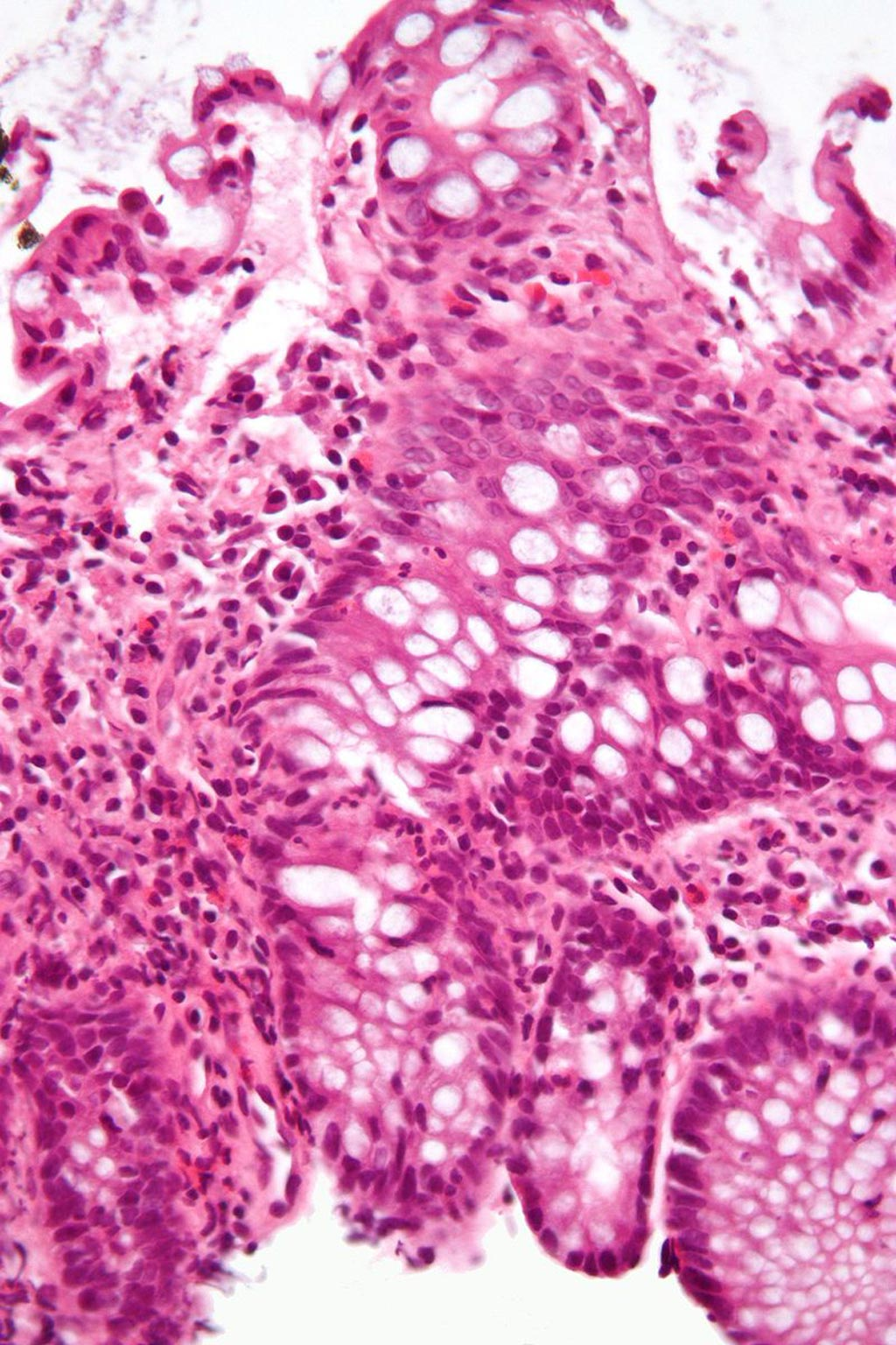 Image: A micrograph of a colonic biopsy showing inflammation of the large bowel in a case of inflammatory bowel disease (Photo courtesy of Wikimedia Commons).