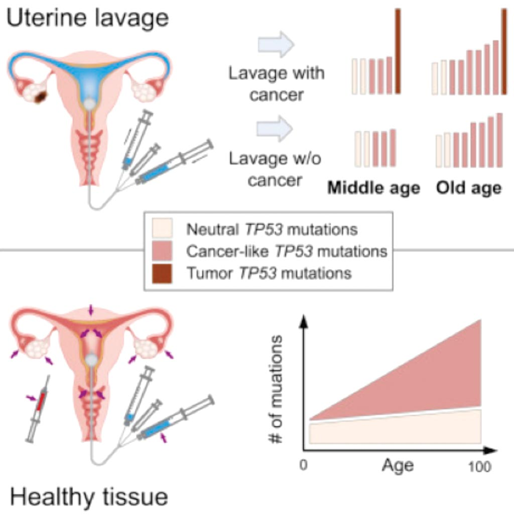 Image: Ultra-Sensitive TP53 sequencing for cancer detection reveals progressive clonal selection in normal tissue over a century of human lifespan (Photo courtesy of University of Washington).