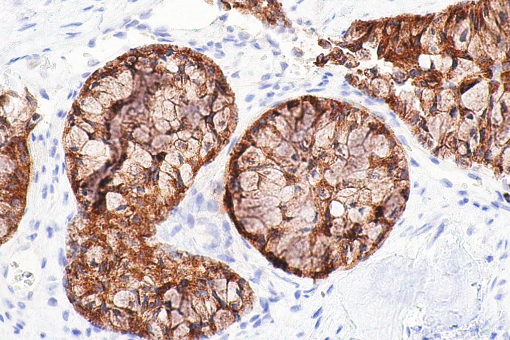 Image: A micrograph showing an adenocarcinoma of the lung (Photo courtesy of Wikimedia Commons).