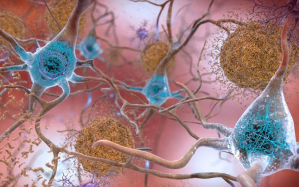 Image: In brains affected by Alzheimer's disease, abnormal levels of the beta-amyloid protein clump together to form plaques (seen in brown) that collect between neurons and disrupt cell function. Abnormal collections of the tau protein accumulate and form tangles (seen in blue) within neurons, harming synaptic communication between nerve cells (Photo courtesy of the [U.S.] National Institute on Aging).