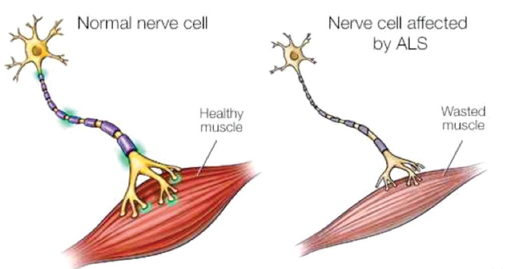 Image: A diagram of a normal and a nerve cell affected by amyotrophic lateral sclerosis (Photo courtesy of Mayo Clinic).