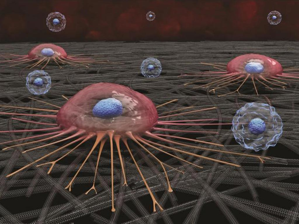 Image: A circulating cancer cell (pink) attaches to carbon nanotube surface; white blood cells (blue) do not adhere and are later washed away (Photo courtesy of Curtis Sayers).