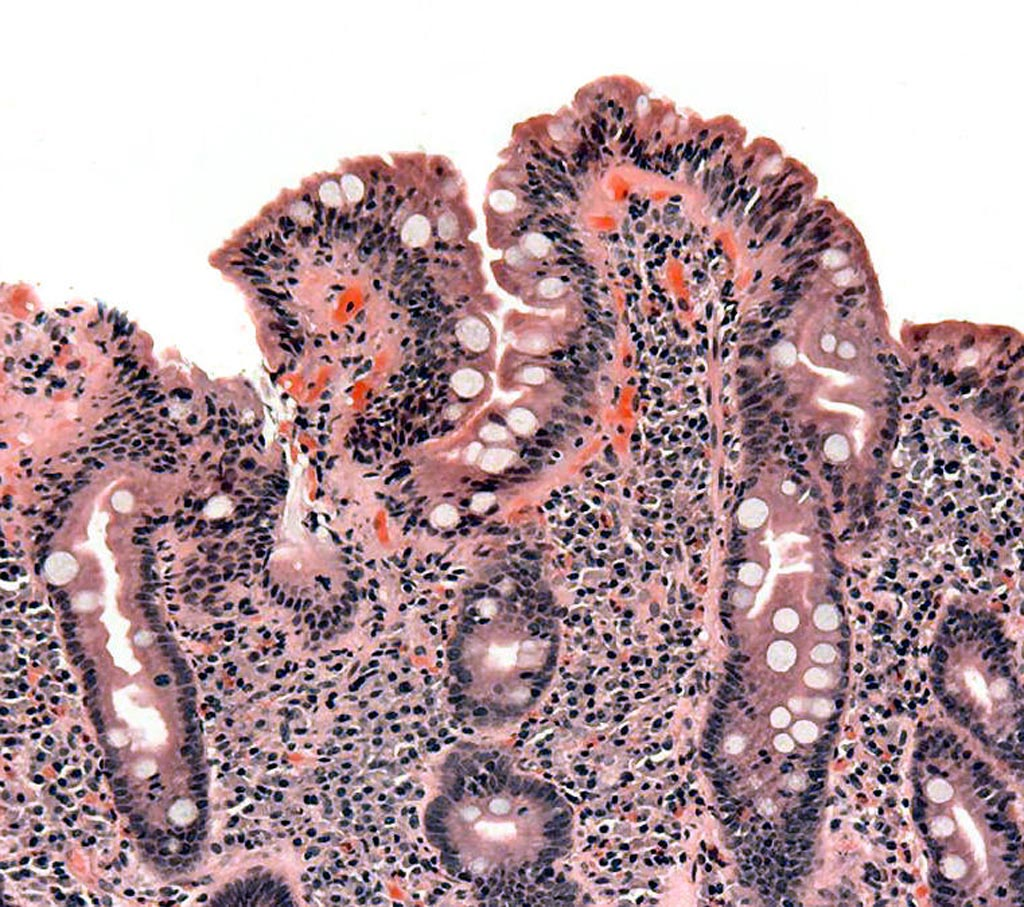 Image: A biopsy of small bowel showing celiac disease manifested by blunting of villi, crypt hypertrophy, and lymphocyte infiltration of crypts (Photo courtesy of Wikimedia Commons).