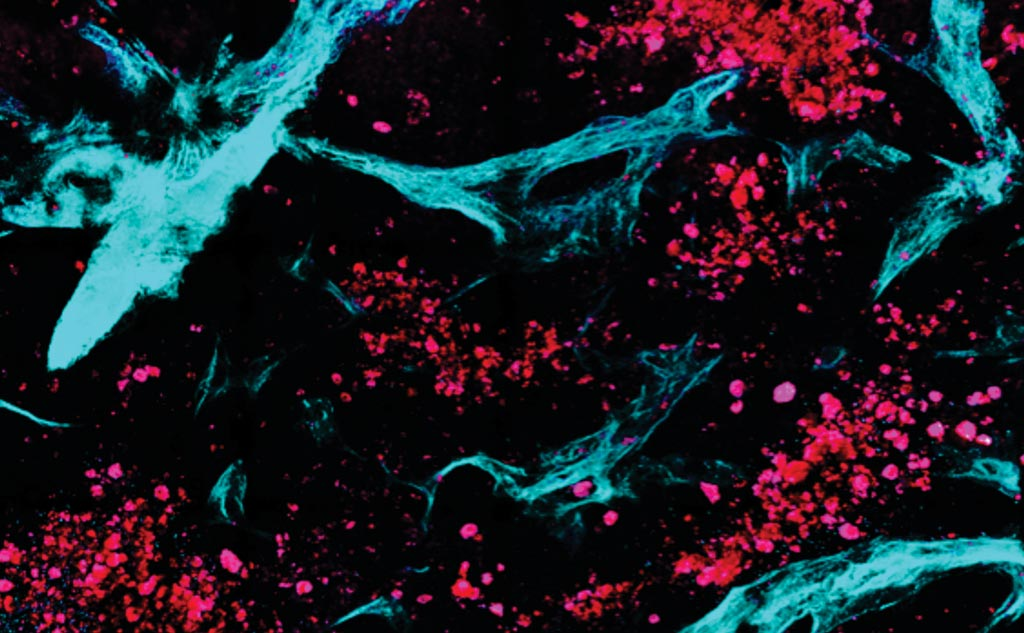 Image: Scientists combined multiphoton microscopy with automated image and statistical analysis algorithms to distinguish between healthy and diseased tissue. In this image, collected in a completely label-free, noninvasive manner, collagen is colored green while ovarian metastatic cell clusters are presented in red (Photo courtesy of Tufts University).