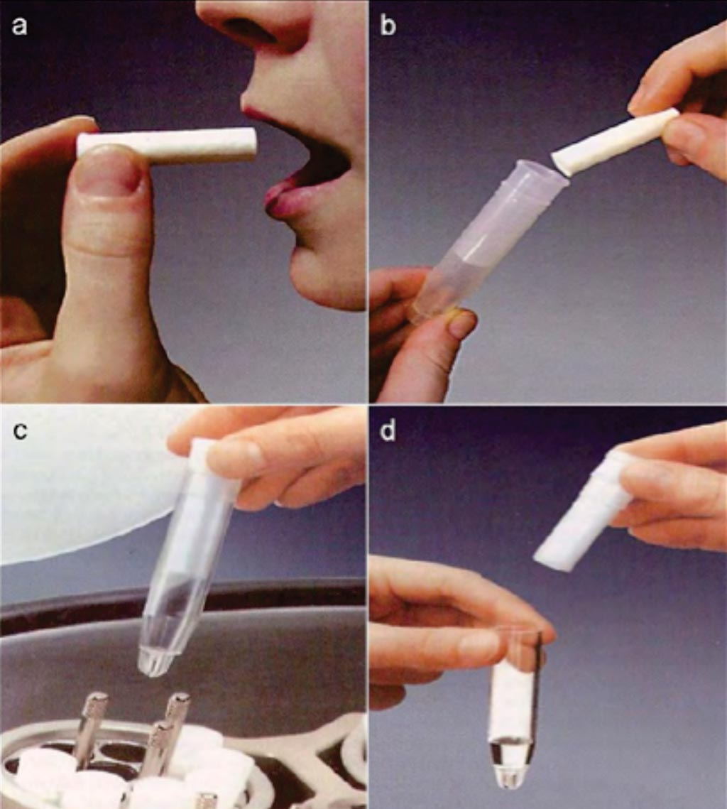Image: A collection of whole saliva by the Salivette (absorbent) method. (a) Saliva is collected by chewing a cotton wool swab. (b) The swab containing saliva is placed in the tube of Salivette. (c) Centrifugation of the assemblage. (d) Saliva is separated from the swab and is ready for analysis (Photo courtesy of Sarstedt).