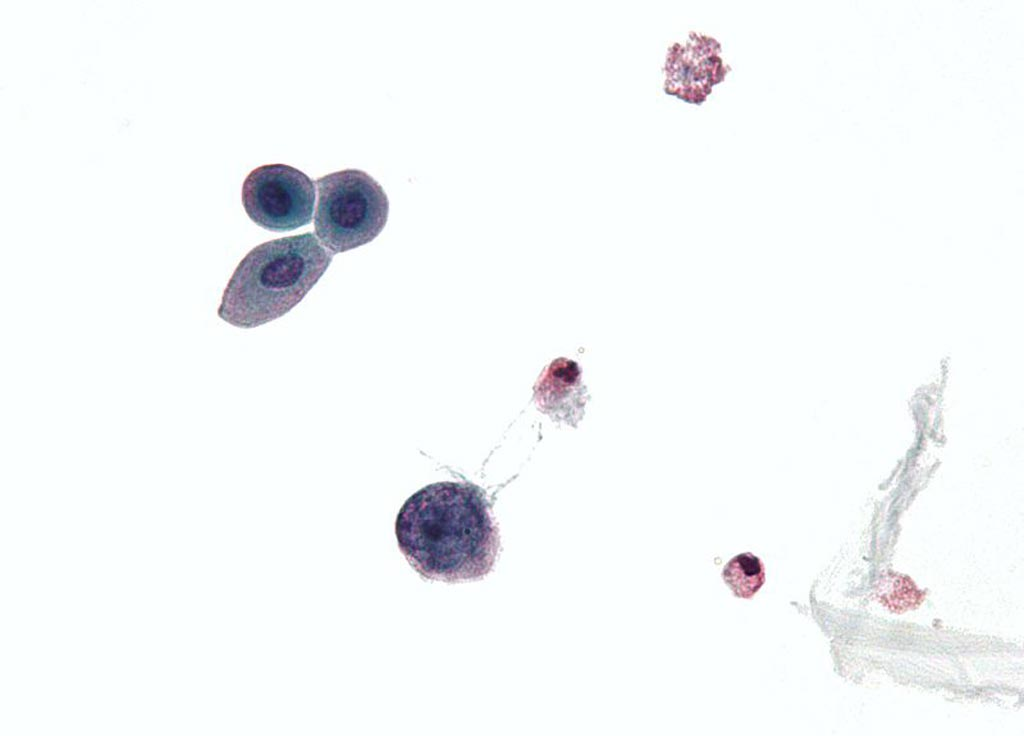 Image: A micrograph of a urine cytology specimen showing a polyomavirus infected cell (Photo courtesy of Wikimedia Commons).