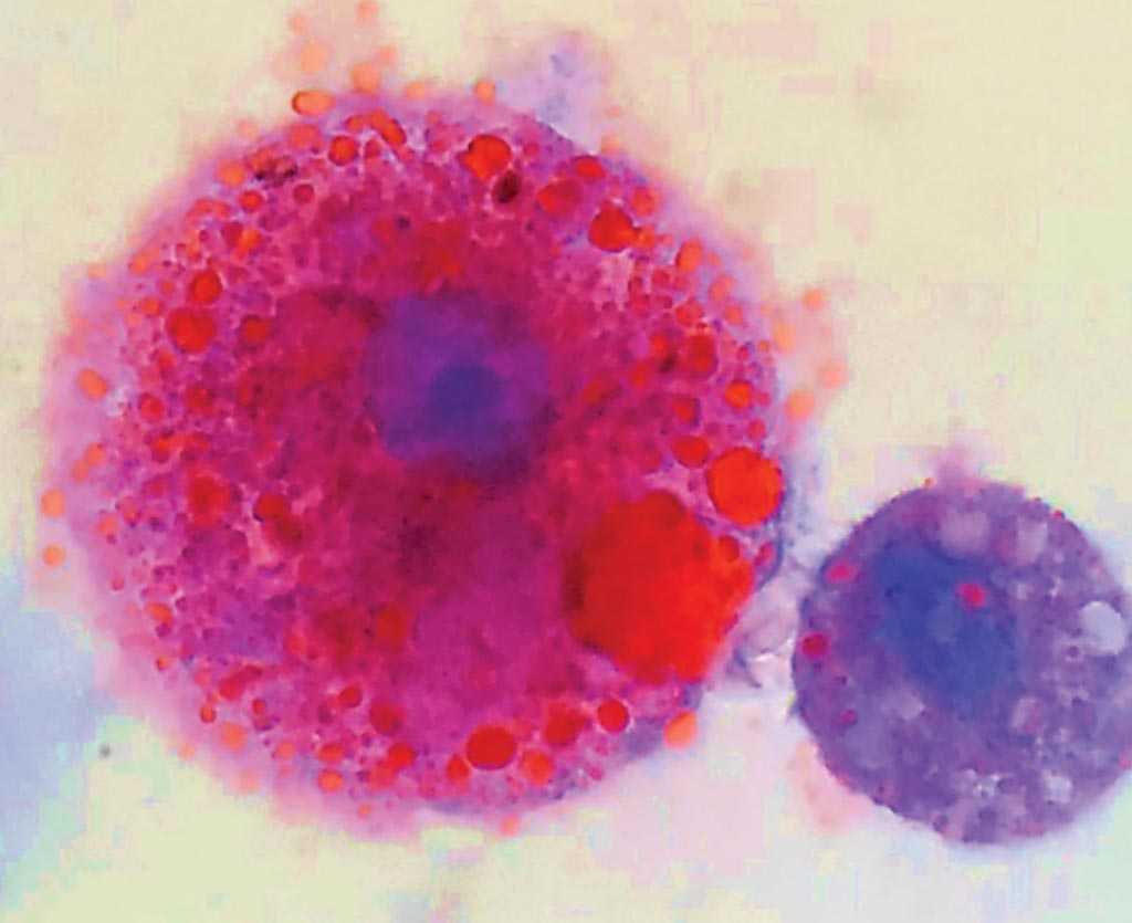 Image: Lipid-laden macrophages found in patients with vaping-related respiratory illness. Oily lipids are stained red (Photo courtesy of Andrew Hansen, MD, Jordan Valley Medical Center).