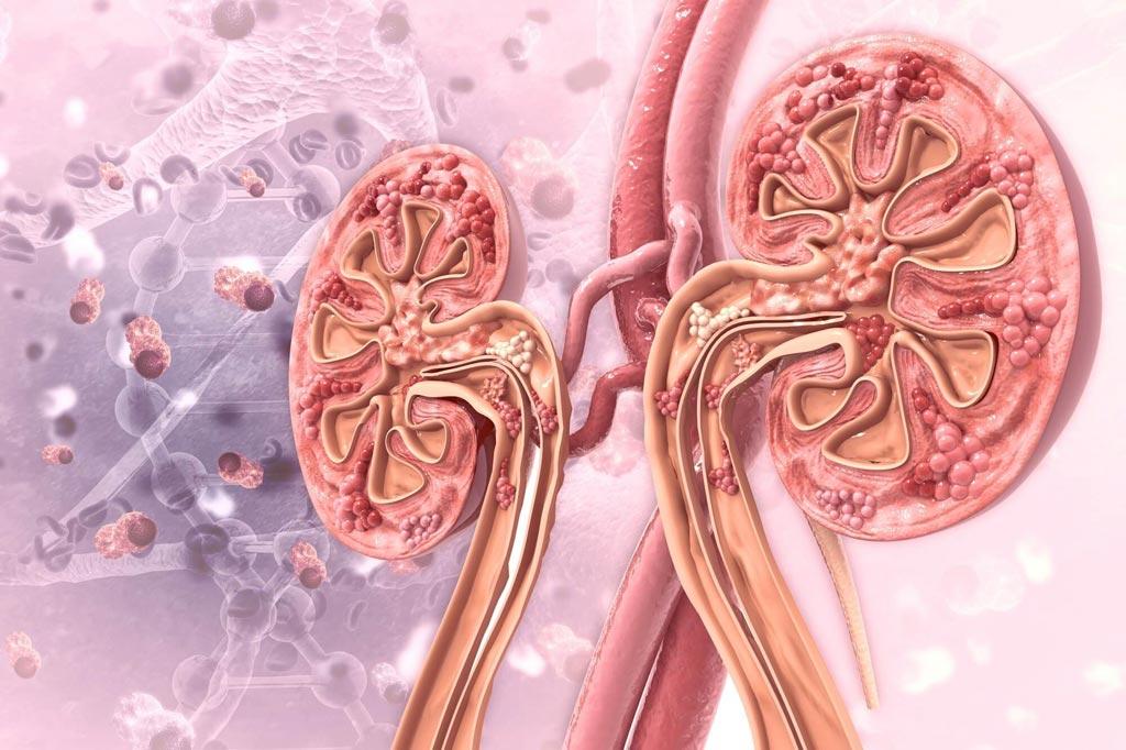 В новом исследовании предполагается, что пациенты с подагрой имеют повышенный риск развития хронической болезни почек (фото любезно предоставлено Shutterstock).