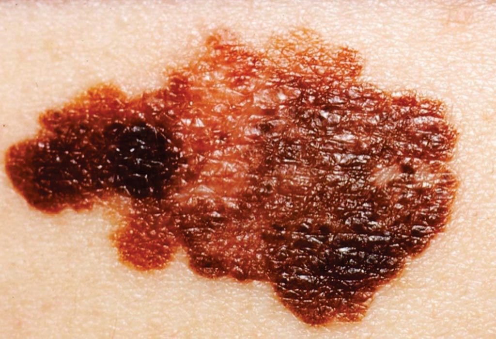 Image: A melanoma on a patient\'s skin. Most melanomas are black or brown, but they may also be skin-colored, pink, red or purple. People with chronic lymphocytic leukemia are at a higher risk for melanomas (Photo courtesy of the National Cancer Institute).