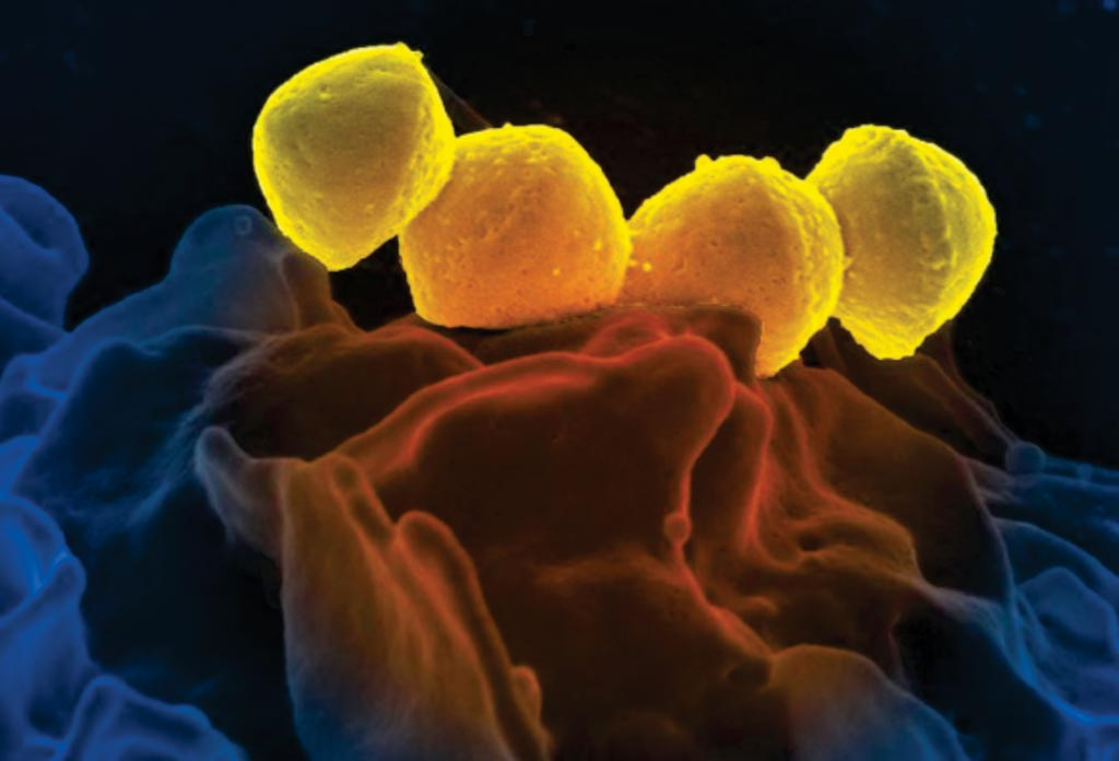 Image: This digitally colorized scanning electron microscopic (SEM) picture depicts four, yellow colored, Group A Streptococcus (GAS), Streptococcus pyogenes bacteria, which were atop the surface of a human white blood cell (WBC), known as a neutrophil (Photo courtesy of the US National Institute of Allergy and Infectious Diseases).