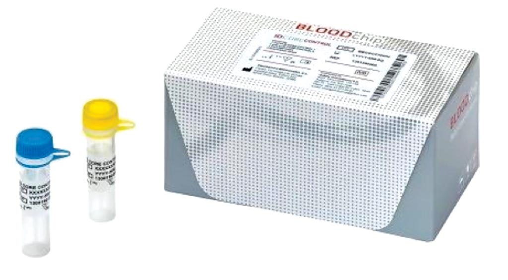 Image: The ID Core XT BLOODchip is a molecular-based assay used in blood transfusion medicine to help determine blood compatibility and could supplement the classical blood match methodology (Photo courtesy of Progenika Biopharma SA).