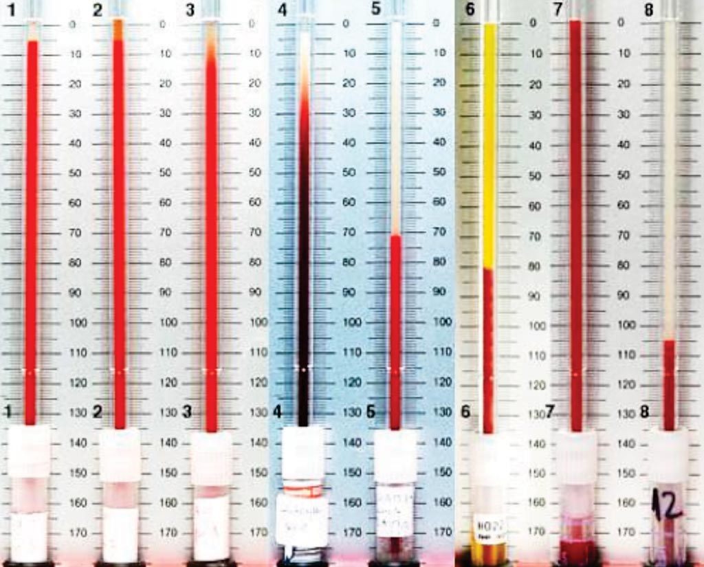 Image: Examples of erythrocyte sedimentation rates (ESR) from normal to pathological conditions. This test indirectly measures the degree of inflammation present in the body (Photo courtesy of The Netherland Association for Hematology).