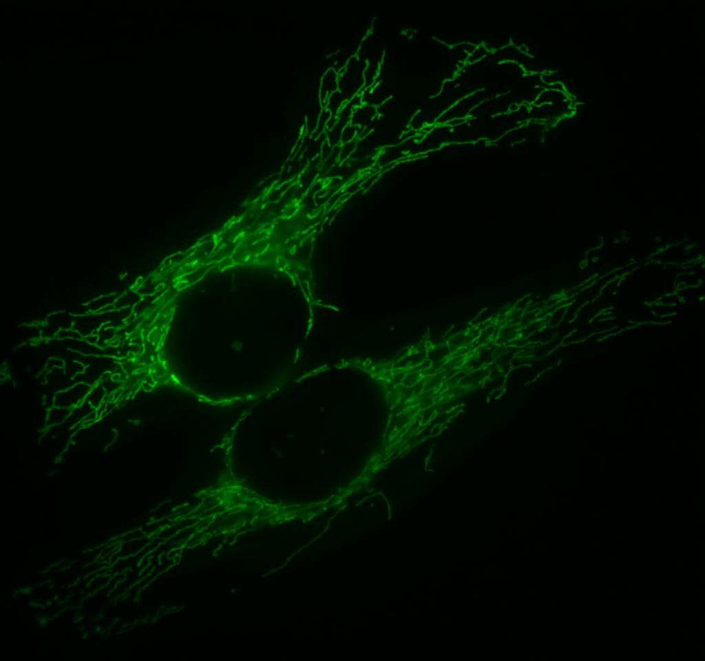 Image: A typical mitochondrial network (green) in two human cells (Photo courtesy of Wikimedia Commons).