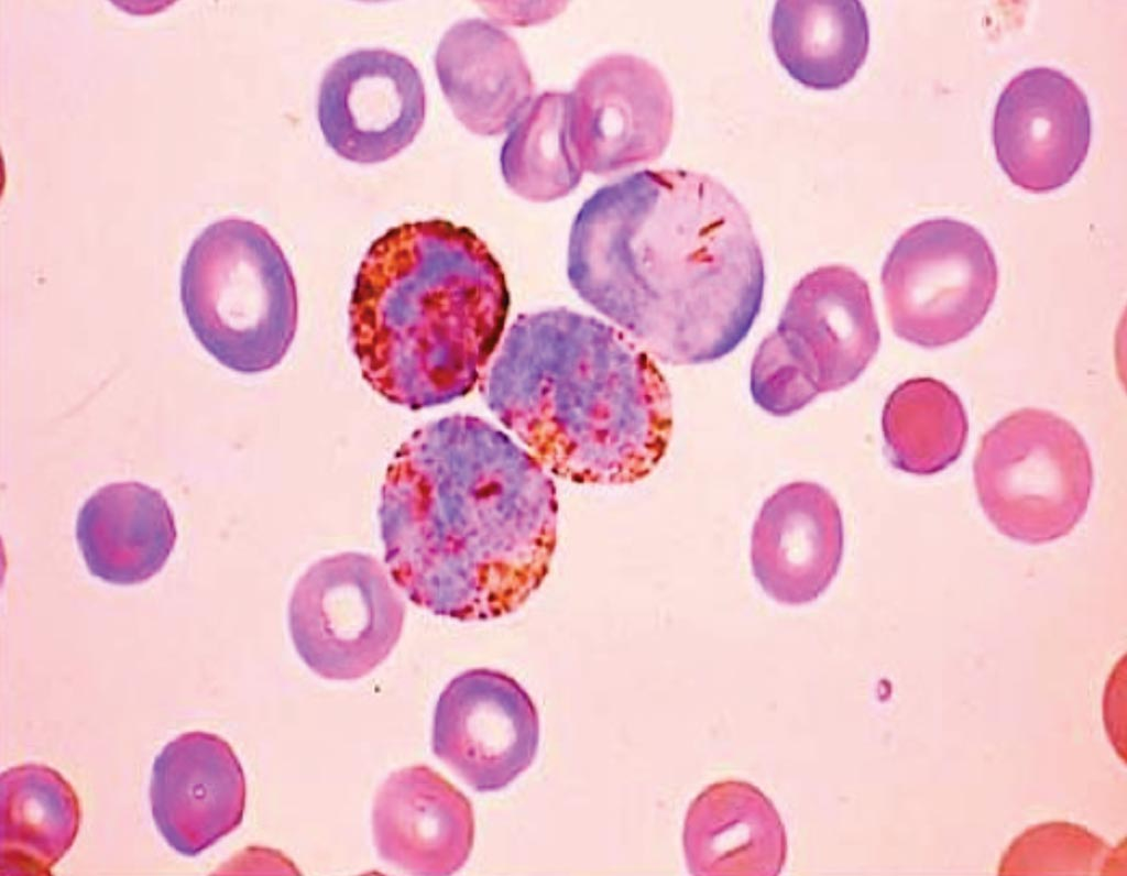 Image: Myeloperoxidase positive staining from a patient with acute myeloid leukemia (Photo courtesy of Monika Nema, MD).