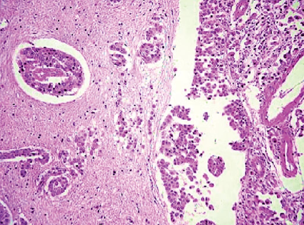 Image: A histopathology of meningeal carcinomatosis with infiltration of the brain gray matter and perivascular malignant cells (Photo courtesy of Zuzana Gdovinova.