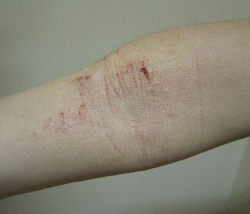 Image: Atopic dermatitis of the inside crease of the elbow (Photo courtesy of Wikimedia Commons).