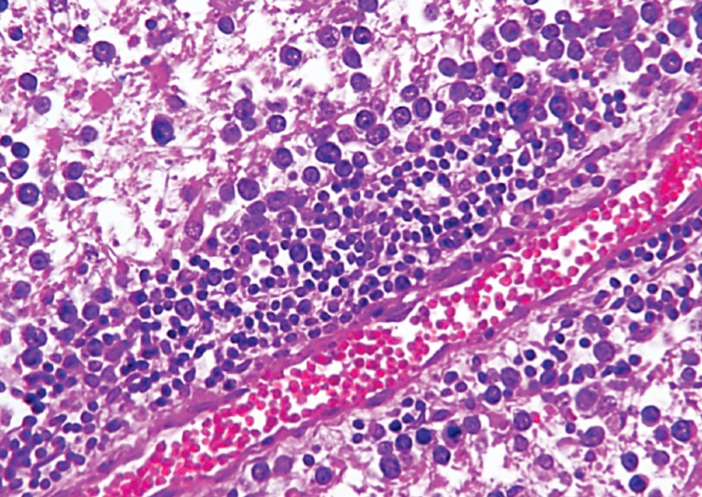 Image: A histopathology of primary central nervous system lymphoma showing small purple cells along the blood vessel in the brain (Photo courtesy of Columbia University Medical Center).