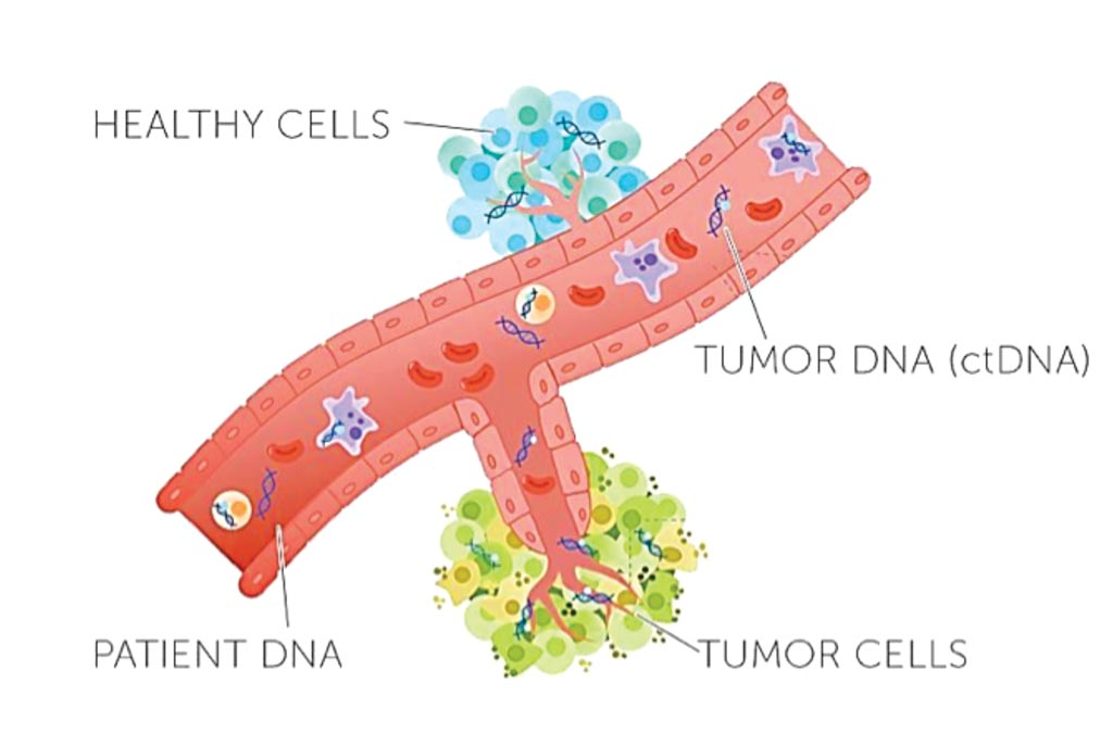 Image: Blood tests can sample circulating DNA cast off by solid tumors, providing information about the tumor and its likely response to treatment without the need for an invasive tumor biopsy (Photo courtesy of Rachel June Wong).