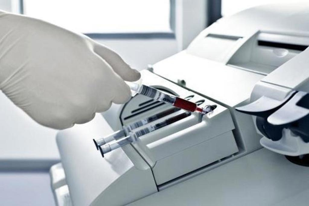 Image: The Bench Top segment is the biggest driver to the global blood gas and electrolyte analyzers market (Photo courtesy of Market Research Business).