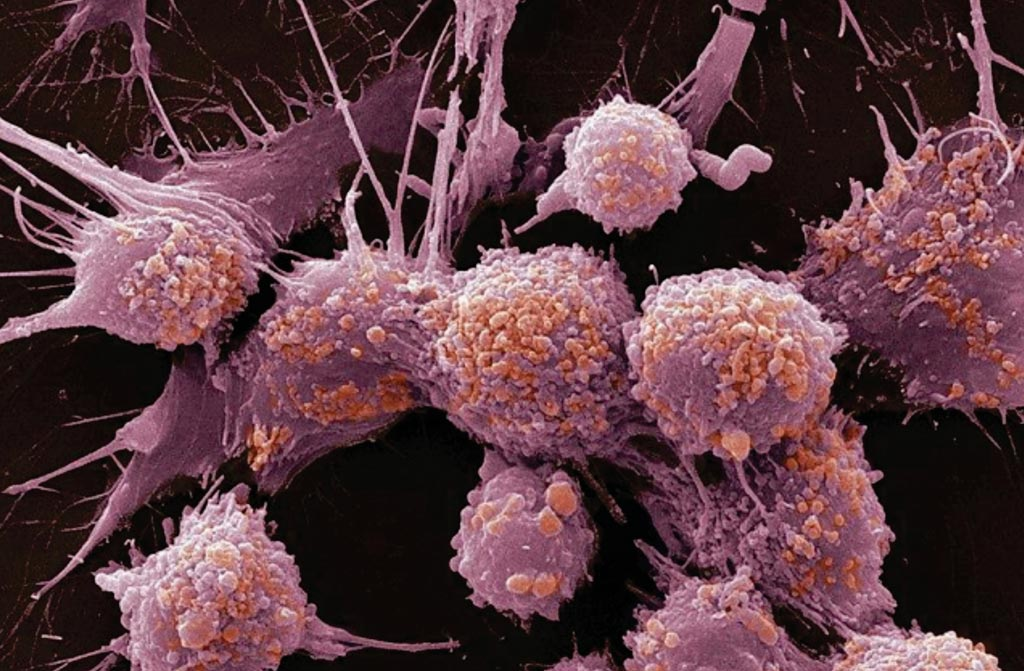 Image: A scanning electron micrograph (SEM) of prostate cancer cells (Photo courtesy of Sloan Kettering Institute).