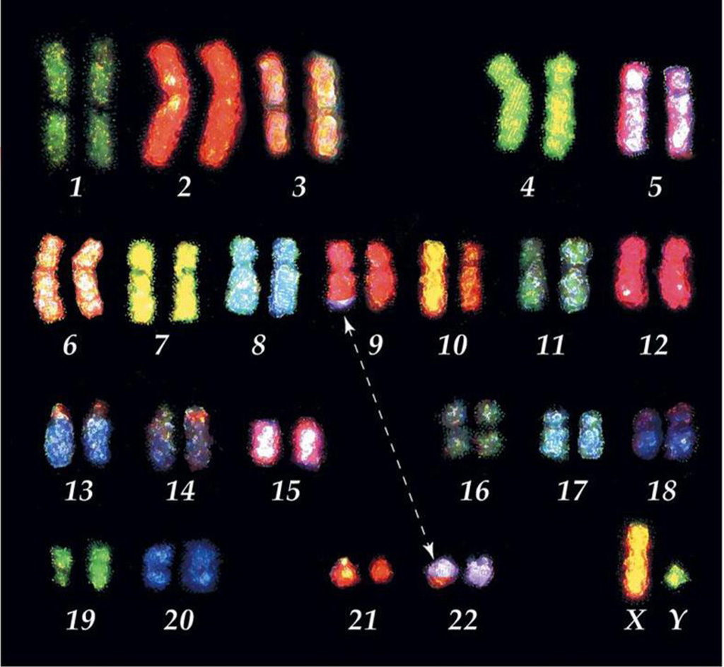 Image: Translocation: a fragment of a chromosome is moved (trans-located) from one chromosome to another and joins a non-homologous chromosome. The balance of genes is still normal (nothing has been gained or lost), but can alter phenotype as it places genes in a new environment (Photo courtesy of Indiana University).
