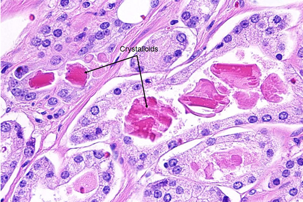 Image: Histopathology of prostate cancer: crystalloids (bright eosinophilic rhomboid to prismatic structures, seen in ~40% cancer) and amorphous eosinophilic secretions (Photo courtesy the American Urological Association).