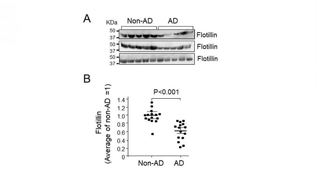 Image: Serum flotillin levels in patients with AD were lower than those in non-AD cases (Photo courtesy of Makoto Michikawa, Nagoya City University)