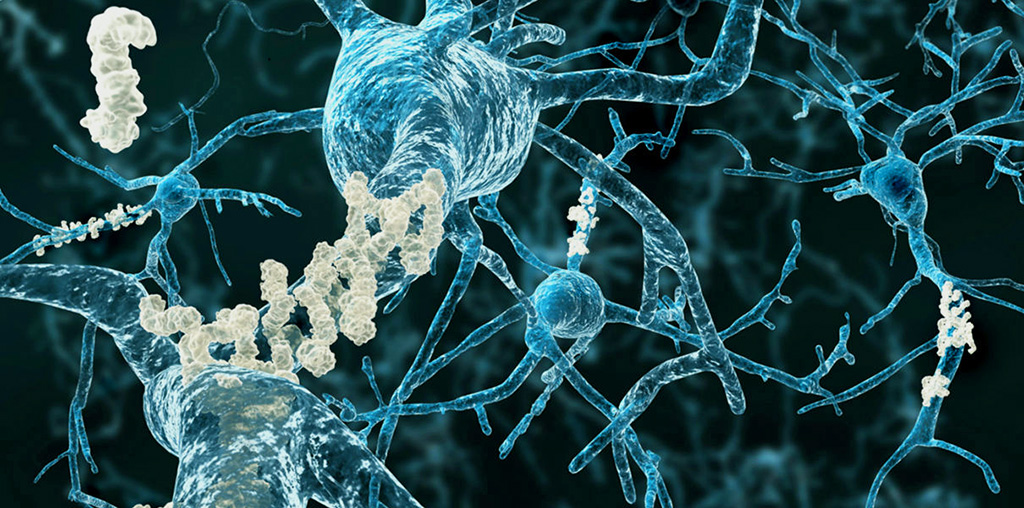 Image: Rare gene variant APOE3ch may hold clues to preventing Alzheimer's disease (Photo courtesy of Alice Bough).