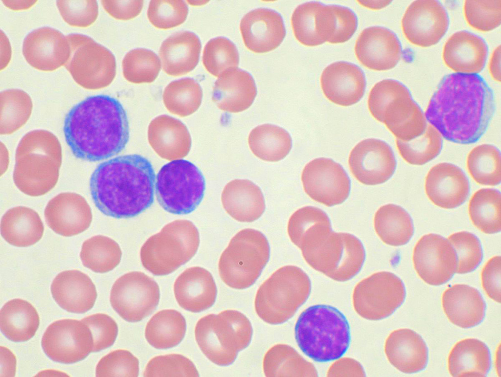 Image: Peripheral blood smear from a patient with chronic lymphocytic leukemia (CLL). The lymphocytes with the darkly staining nuclei and scant cytoplasm are the CLL cells (Photo courtesy of VashiDonsk).