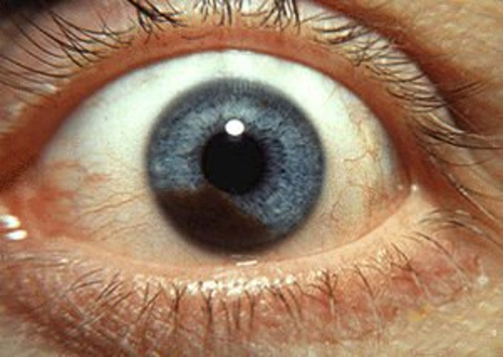Image: Photograph of an iris melanoma (Photo courtesy of Wikimedia Commons)